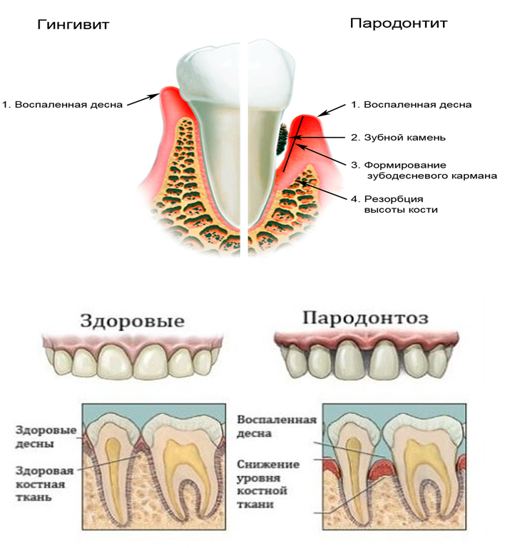 parodont3