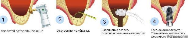 implant5