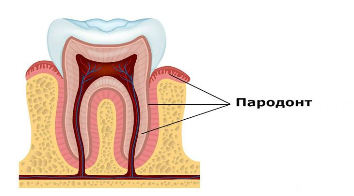 parodont1