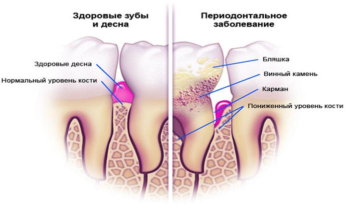 parodont2
