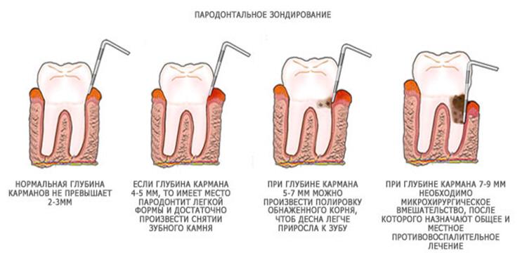 parodont4